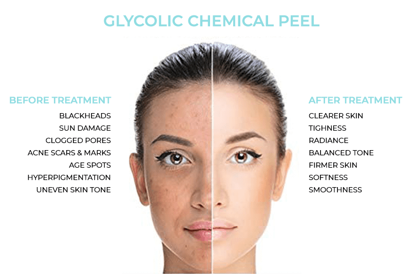 Glycolic Chemical Peel Treatment